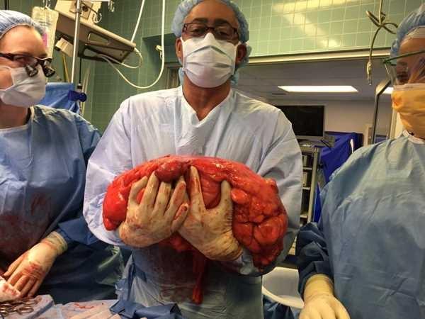 вырезанная опухоль у человека