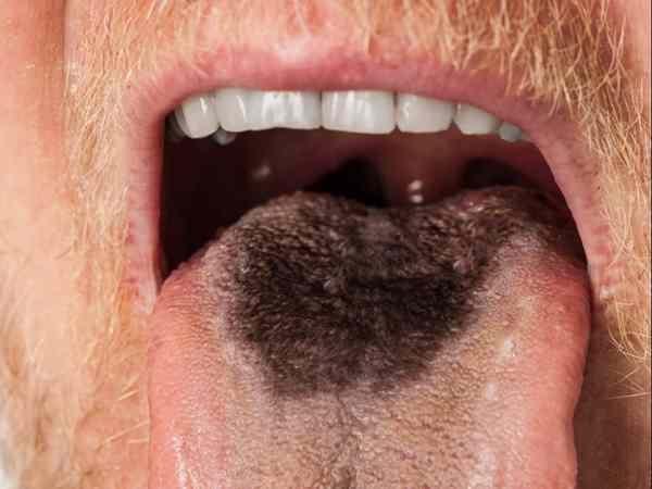 стал волосатым язык