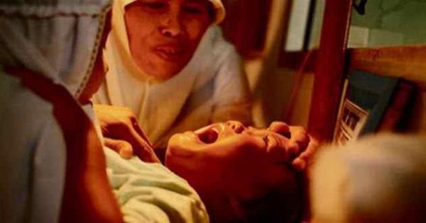 Фото. Проведение обрезания у женщины