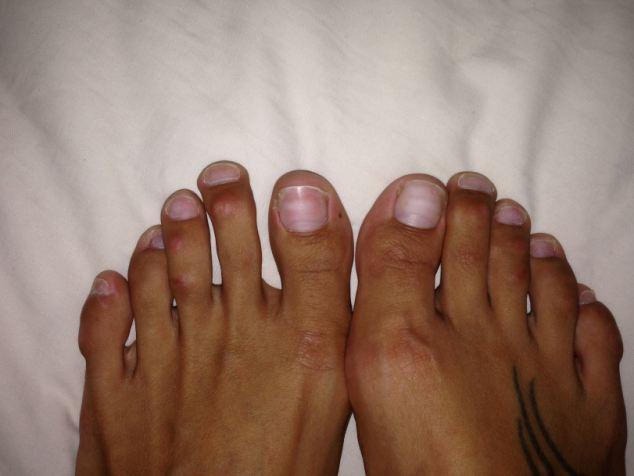 Все фото женских пальцев ног фото 169-41