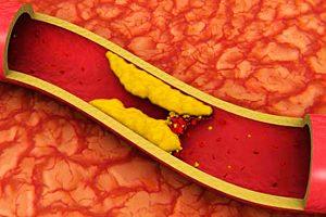 Фото. Холестерин в крови