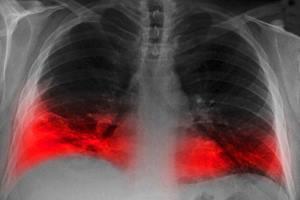 Фото. Интересное о пневмонии