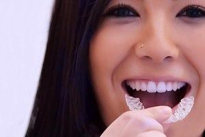 Эти брекеты позволяют исправить дефект зубов