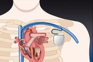 Схематично нарисовано сердце и кардиостимулятор