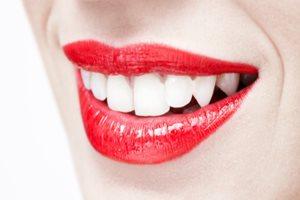 Красивая улыбка  и зубы