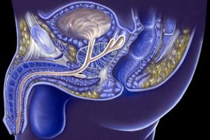 стерилизация мужчин или вазектомия