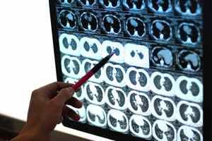 изучение головы по снимку сделанного рентгеном