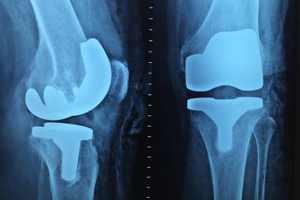 костные трансплантаты