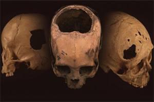 черепа после трепанации