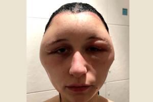 распухшая голова девушки